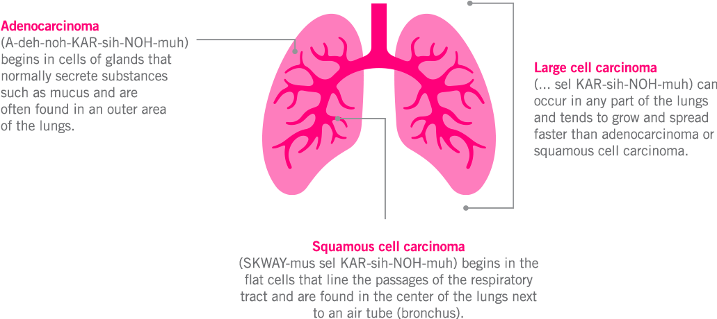 Lung diagram of adenocarcinoma, large cell carcinoma, and squamous cell carcinoma